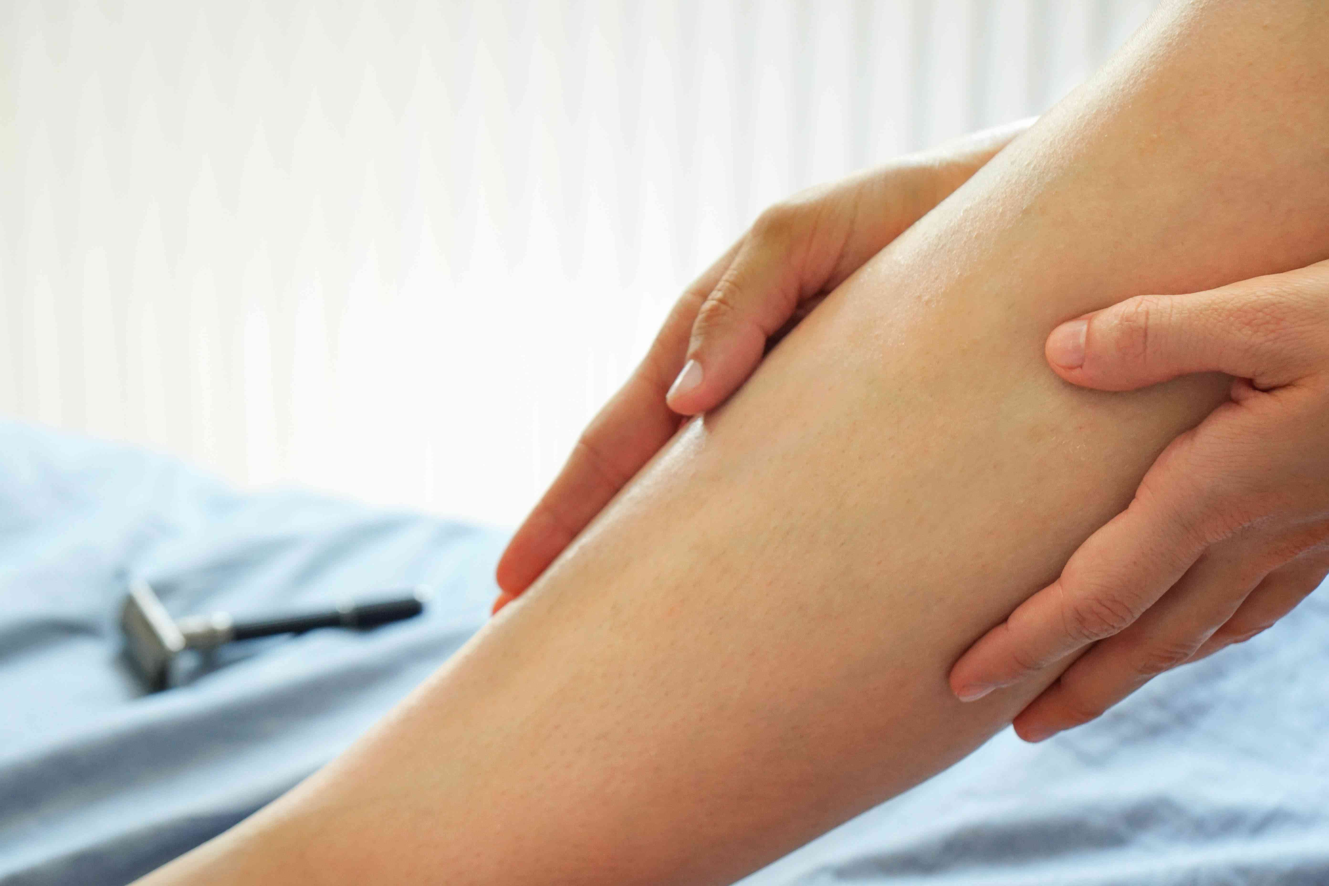 woman rubs shea butter into legs to fade stretch marks
