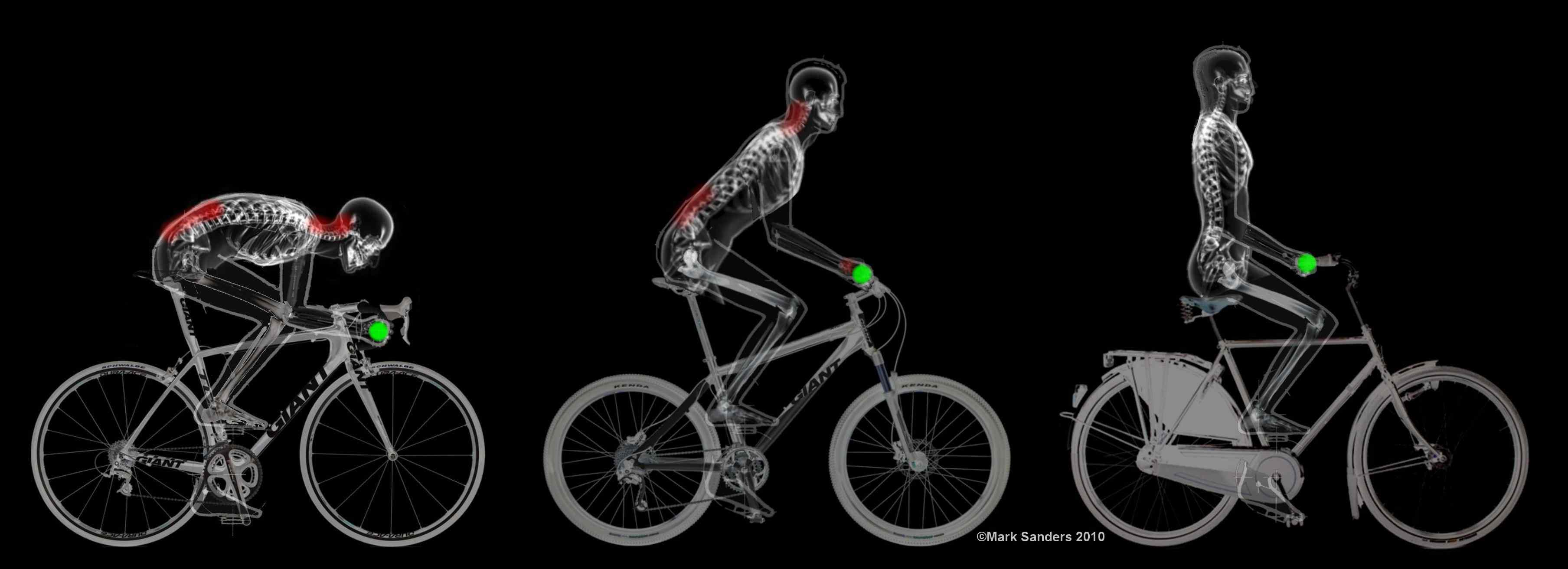 Xrays of a person in different postures on a bike