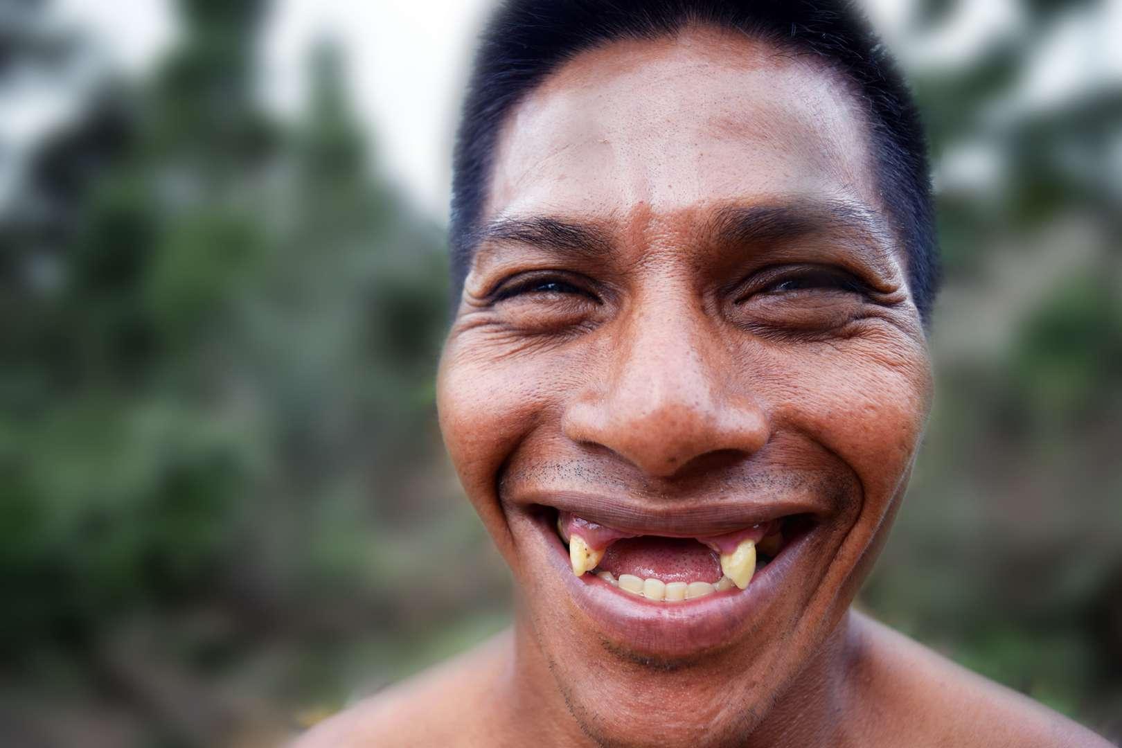 indigenous Waorani tribemember with missing teeth