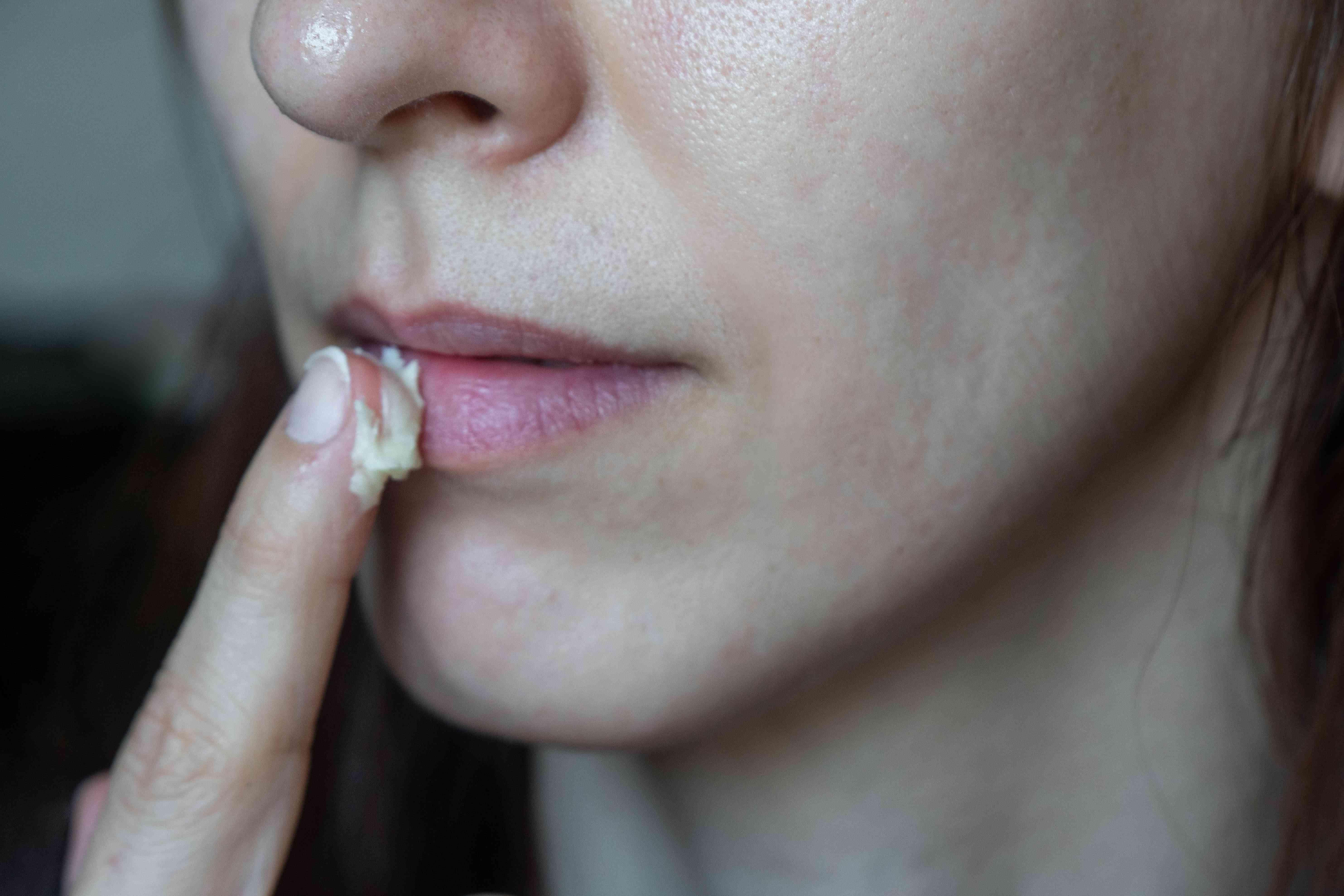 close shot of person rubbing raw shea butter on lips as diy lip balm