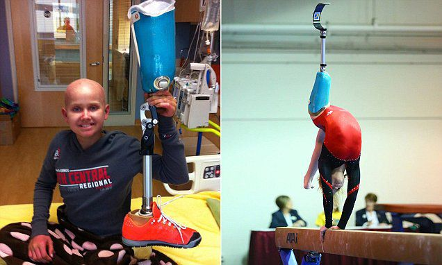 Kate Foster with prosthetic leg and on balance beam