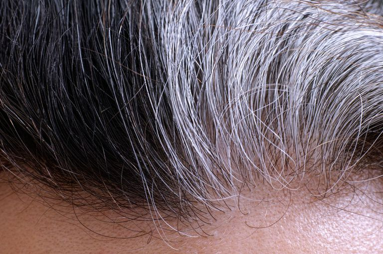Close-up of a person's hairline with black and gray hairs
