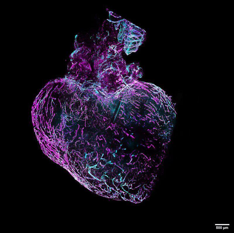 Cardiac Lymphatic Network Remodeling