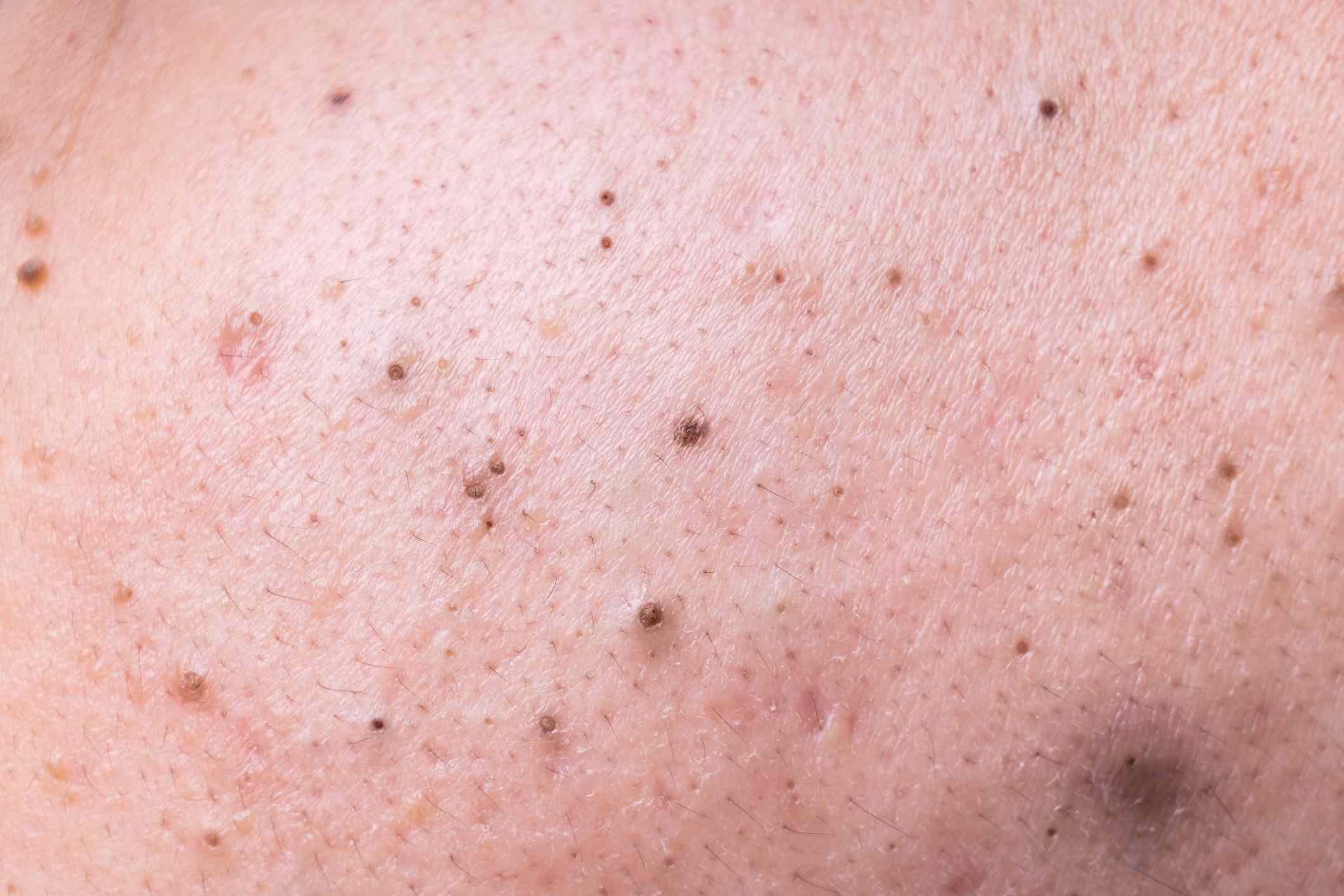 Close up of blackheads on skin.