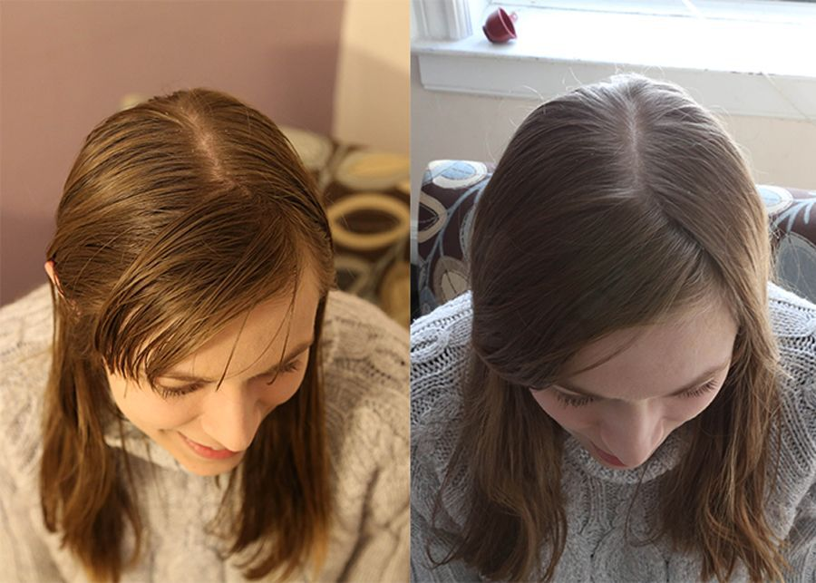 Side-by-side photos showing hair 20 days without shampoo and hair after after washing with baking soda