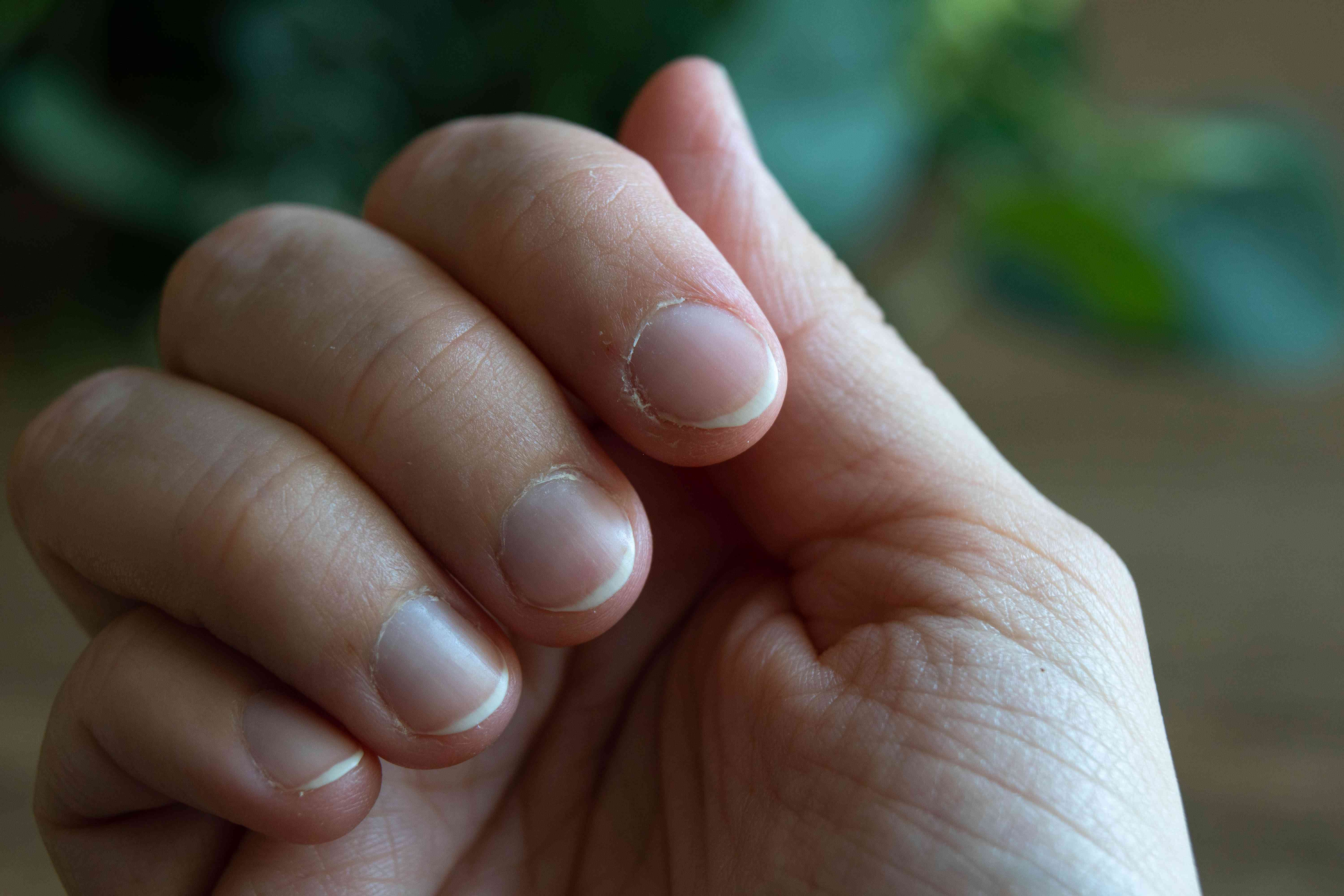 close shot of curled hand showing healthy cuticles and nails