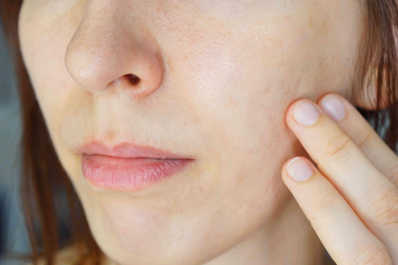 woman rubs shea butter into cheek to soothe eczema