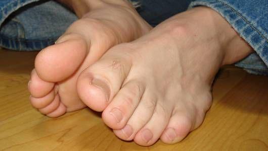 Mis pies malolientes están volviendo loca a mi esposa. ¿Cómo puedo arreglarlos para que no me deje?